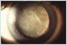 mature-cataract