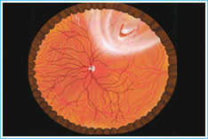 2. Peripheferal-retinal-hole