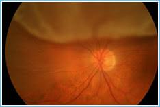 3. Retinal Detachment