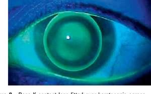 4. Rose-K Lens