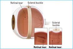 Bulking-procedure