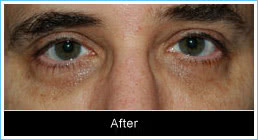 Ptosis-correction-after