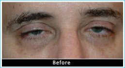 Ptosis-correction-before